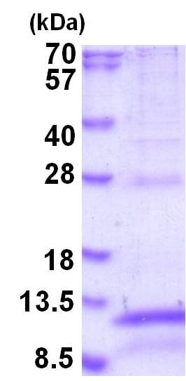 SDS-PAGE - Recombinant Human CD9 protein (ab202194)