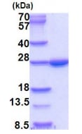 SDS-PAGE - Recombinant Human BNIP1 protein (denatured) (ab202216)