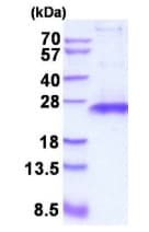 SDS-PAGE - Recombinant Human TIMP1 protein (ab202236)