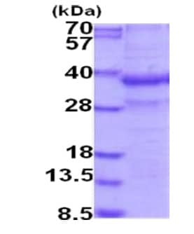 SDS-PAGE - Recombinant Human Zinc Alpha 2 Glycoprotein (His tag) (denatured) (ab202244)