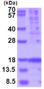 SDS-PAGE - Recombinant Human TSLP protein (His tag) (denatured) (ab202263)