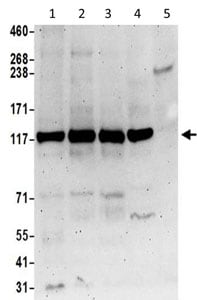 Western blot - Anti-SMCR8 antibody (ab202283)