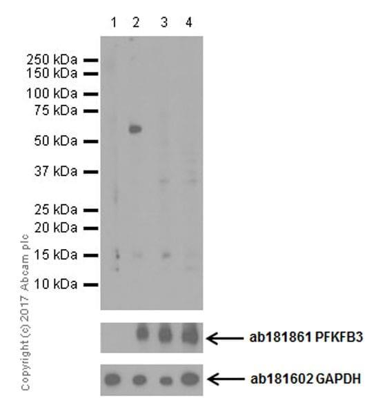 Western blot - Anti-PFKFB3 (phospho S461) antibody [EPR19735] (ab202291)