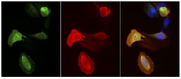 Immunocytochemistry/ Immunofluorescence - Anti-FAF1 antibody (ab202298)