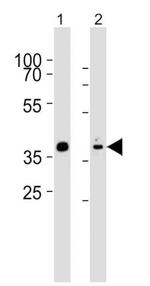 Western blot - Anti-Nkx2.5 antibody (ab202321)