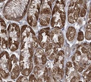 Immunohistochemistry (Formalin/PFA-fixed paraffin-embedded sections) - Anti-PHLDB2 antibody (ab202350)