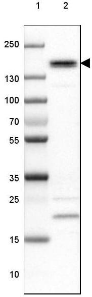 Western blot - Anti-PHLDB2 antibody (ab202350)