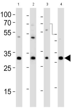 Western blot - Anti-PCGF1 antibody (ab202395)
