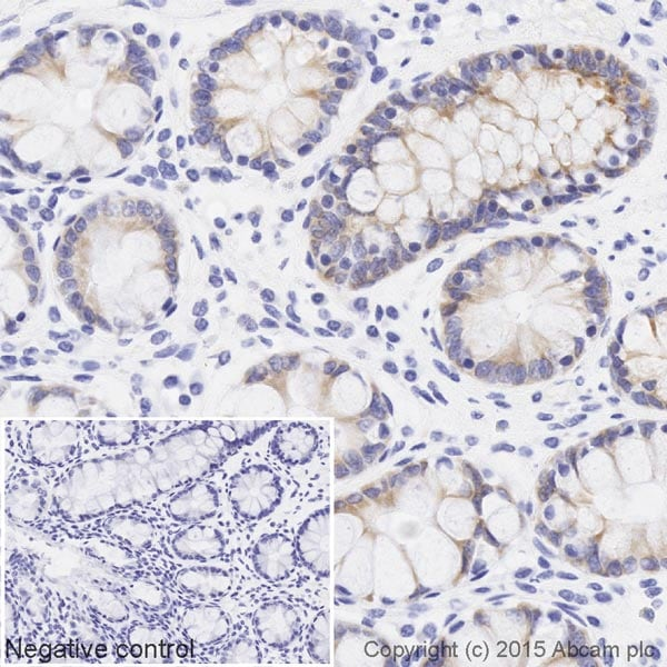 Immunohistochemistry (Formalin/PFA-fixed paraffin-embedded sections) - Anti-BMP4 antibody [EPR6211] (Biotin) (ab202525)