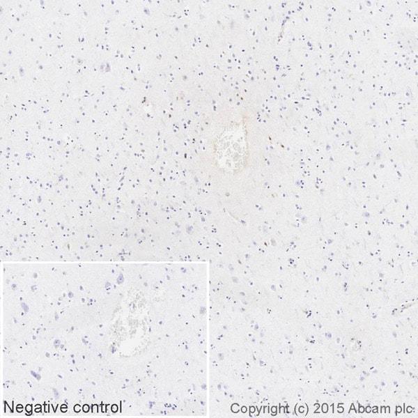 Immunohistochemistry (Formalin/PFA-fixed paraffin-embedded sections) - Anti-Kappa light chain antibody [EPR5367-8] (HRP) (ab202549)