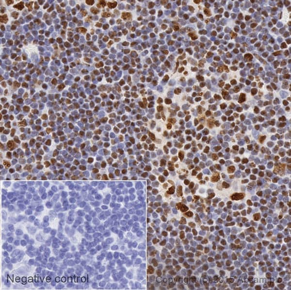 Immunohistochemistry (Formalin/PFA-fixed paraffin-embedded sections) - Anti-Nucleophosmin antibody [3A9F1] (HRP) (ab202579)