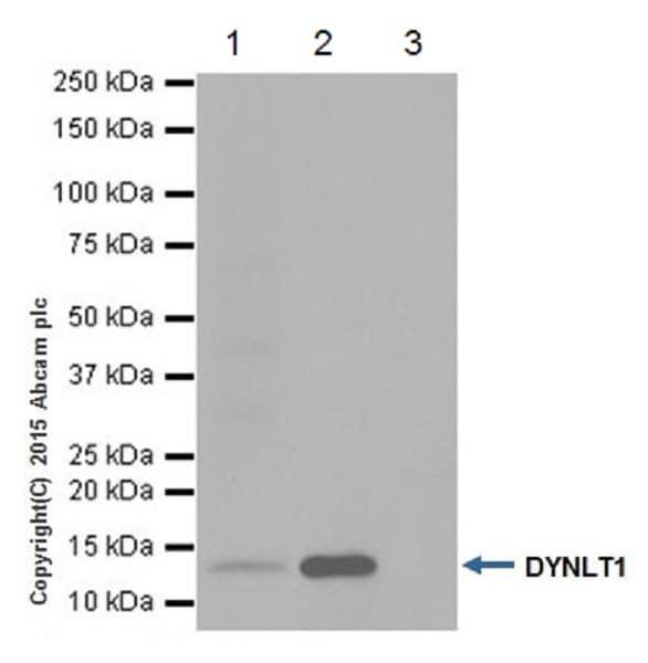 Immunoprecipitation - Anti-TCTEX-1 antibody [EPR17294] (ab202583)
