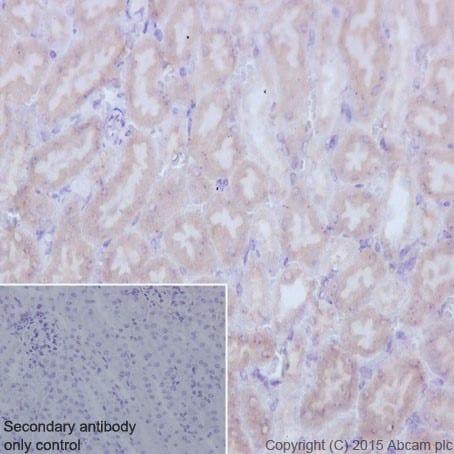 Immunohistochemistry (Formalin/PFA-fixed paraffin-embedded sections) - Anti-TCTEX-1 antibody [EPR17294] (ab202583)