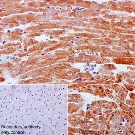 Immunohistochemistry (Formalin/PFA-fixed paraffin-embedded sections) - Anti-NDUFB3 antibody [EPR15571] (ab202585)