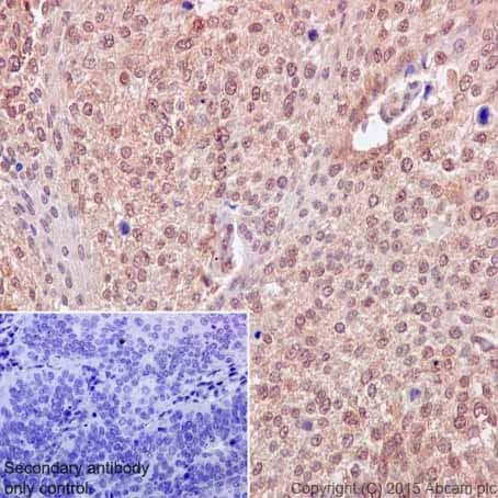 Immunohistochemistry (Formalin/PFA-fixed paraffin-embedded sections) - Anti-VPRBP antibody [EPR16012] (ab202587)