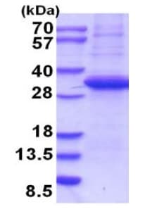 SDS-PAGE - Recombinant Human Langerin protein (denatured) (ab202625)