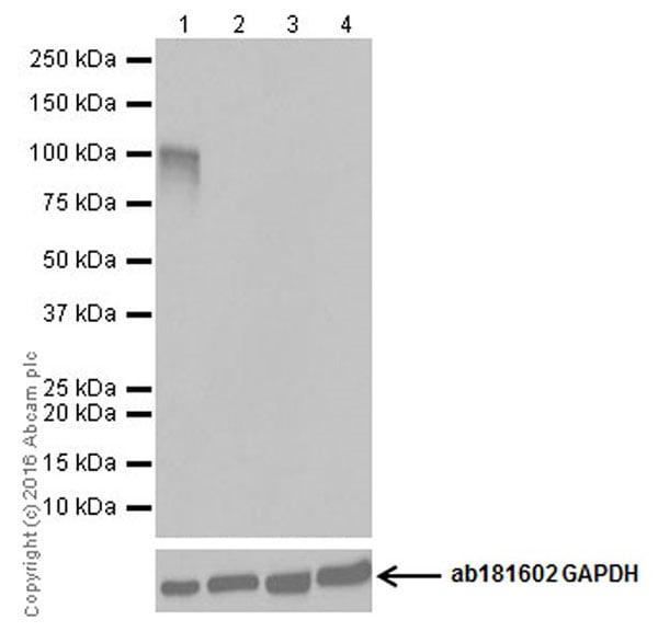 Western blot - Anti-CRISPR-Cas9 antibody [EPR19619-18] (ab202637)