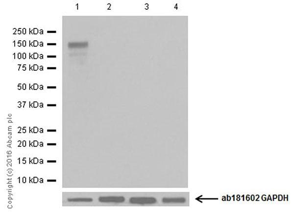 Western blot - Anti-CRISPR-Cas9 antibody [EPR19620] (ab202638)