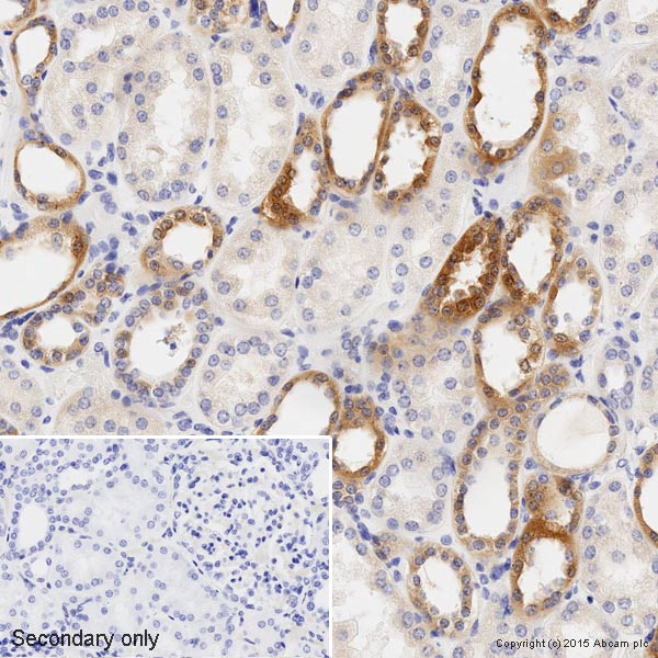 Immunohistochemistry (Formalin/PFA-fixed paraffin-embedded sections) - Anti-IKB alpha antibody [E130] (HRP) (ab202646)