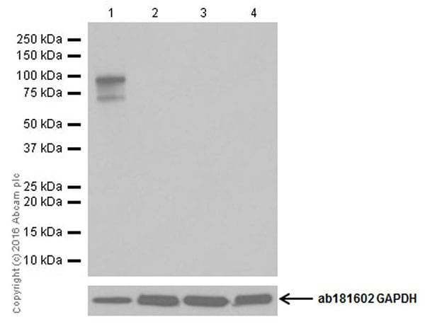 Western blot - Anti-CRISPR-Cas9 antibody [EPR19633] (ab202657)