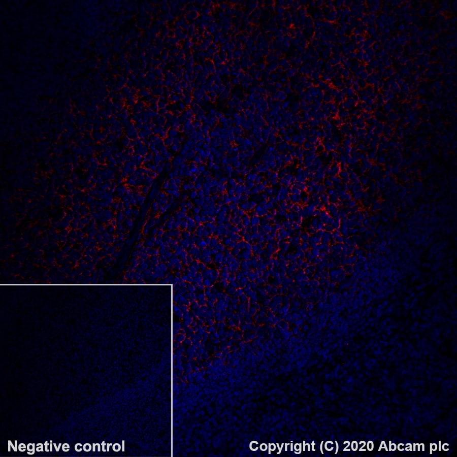 Immunohistochemistry (Formalin/PFA-fixed paraffin-embedded sections) - Alexa Fluor® 647 Anti-CD21 antibody [EP3093] (ab202693)
