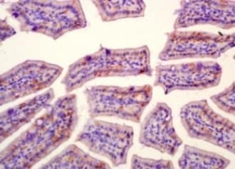 Immunohistochemistry (Formalin/PFA-fixed paraffin-embedded sections) - Anti-SLAMF7/CS1 antibody (ab202840)