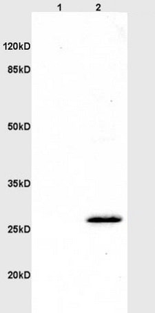 Western blot - Anti-CD160 antibody (ab202845)