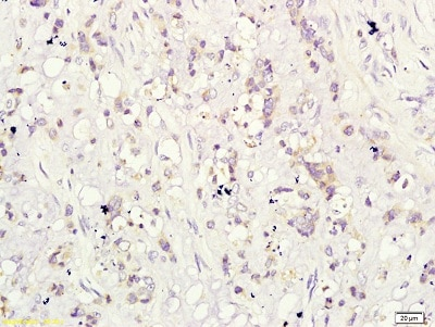 Immunohistochemistry (Formalin/PFA-fixed paraffin-embedded sections) - Anti-CD160 antibody (ab202845)