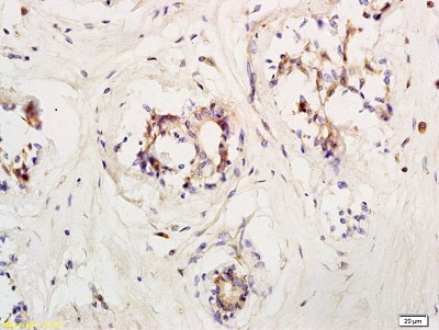 Immunohistochemistry (Formalin/PFA-fixed paraffin-embedded sections) - Anti-LIFR antibody (ab202847)