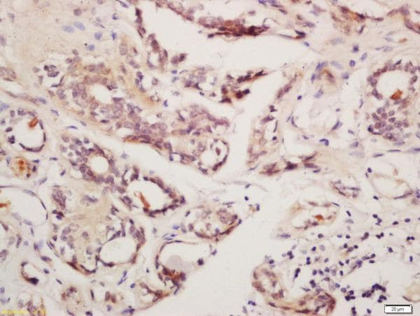 Immunohistochemistry (Formalin/PFA-fixed paraffin-embedded sections) - Anti-GnRHR antibody (ab202848)