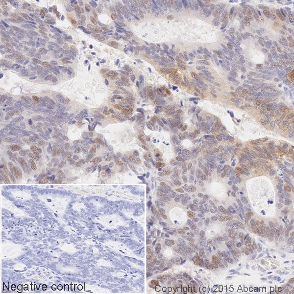 Immunohistochemistry (Formalin/PFA-fixed paraffin-embedded sections) - Anti-p53 (phospho S46) antibody [EP42Y] (HRP) (ab202864)