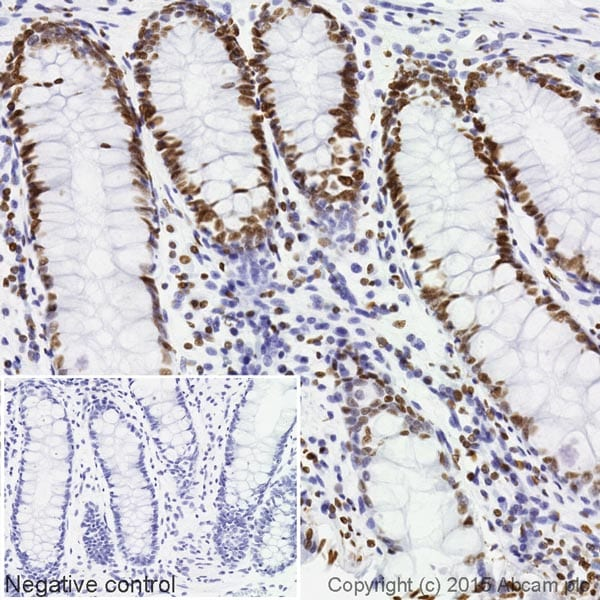 Immunohistochemistry (Formalin/PFA-fixed paraffin-embedded sections) - Anti-Histone H4 (acetyl K5) antibody [EP1000Y] (Biotin) (ab202886)