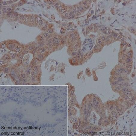 Immunohistochemistry (Formalin/PFA-fixed paraffin-embedded sections) - Anti-MYBBP1A antibody [EPR7205] (ab202896)