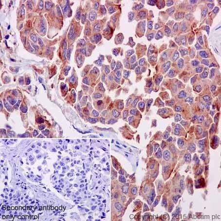 Immunohistochemistry (Formalin/PFA-fixed paraffin-embedded sections) - Anti-ATP6V0D1/P39 antibody [EPR18320] (ab202897)