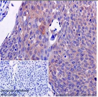 Immunohistochemistry (Formalin/PFA-fixed paraffin-embedded sections) - Anti-ATP6V0D1/P39 antibody [EPR18320-38] (ab202899)