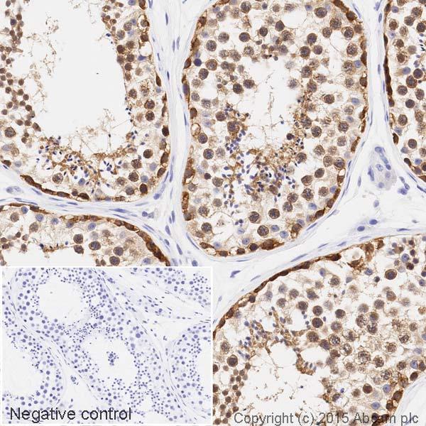 Immunohistochemistry (Formalin/PFA-fixed paraffin-embedded sections) - Anti-STIP1/STI1 antibody [EPR6605] (HRP) (ab202919)