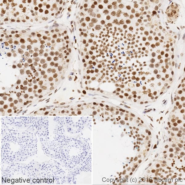 Immunohistochemistry (Formalin/PFA-fixed paraffin-embedded sections) - Anti-SRAP antibody [EPR11776] (HRP) (ab202922)
