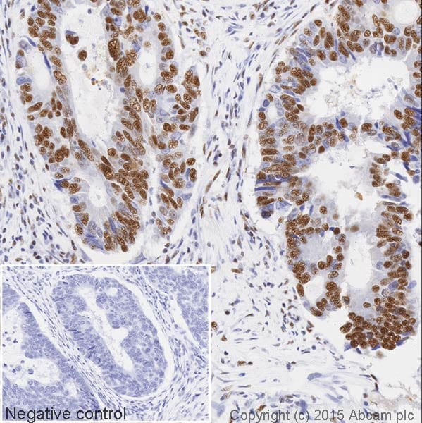 Immunohistochemistry (Formalin/PFA-fixed paraffin-embedded sections) - Anti-SF3B1 antibody [EPR11986] (HRP) (ab202926)