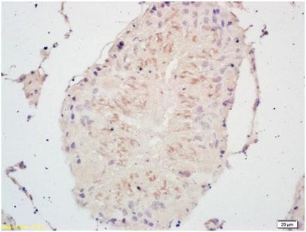 Immunohistochemistry (Formalin/PFA-fixed paraffin-embedded sections) - Anti-PSCA antibody (ab202966)