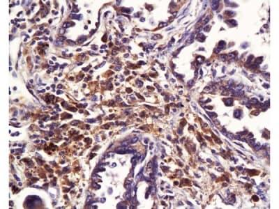 Immunohistochemistry (Formalin/PFA-fixed paraffin-embedded sections) - Anti-ABCB4 antibody - N-terminal (ab202976)