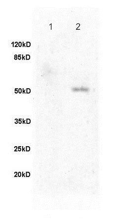 Western blot - Anti-Fibulin 5 antibody (ab202977)