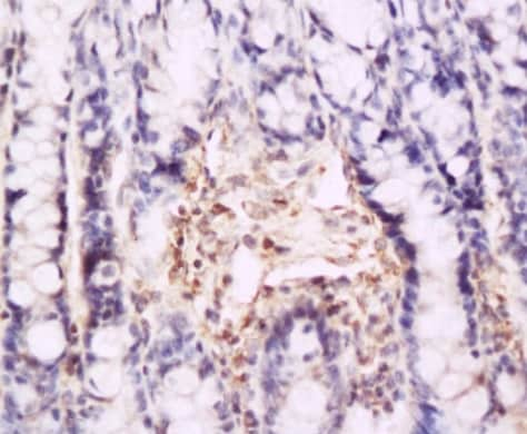 Immunohistochemistry (Formalin/PFA-fixed paraffin-embedded sections) - Anti-CD62P antibody (ab202983)