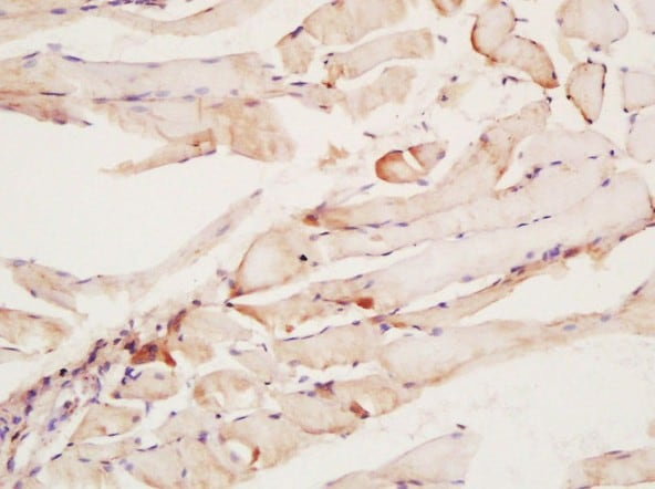 Immunohistochemistry (Formalin/PFA-fixed paraffin-embedded sections) - Anti-CNTFR antibody (ab203024)