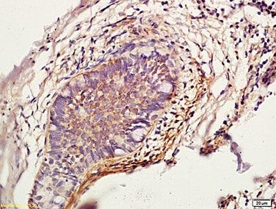 Immunohistochemistry (Formalin/PFA-fixed paraffin-embedded sections) - Anti-Cathepsin L/MEP antibody (ab203028)