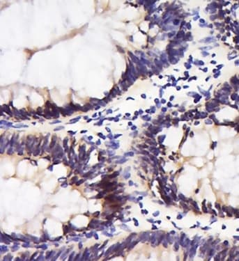 Immunohistochemistry (Formalin/PFA-fixed paraffin-embedded sections) - Anti-Integrin alpha 5 antibody (ab203029)