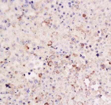 Immunohistochemistry (Formalin/PFA-fixed paraffin-embedded sections) - Anti-CD8 antibody (ab203035)
