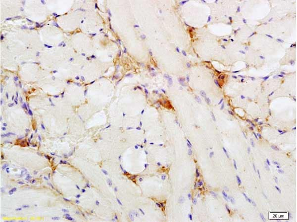 Immunohistochemistry (Formalin/PFA-fixed paraffin-embedded sections) - Anti-Insulin Receptor antibody (ab203037)