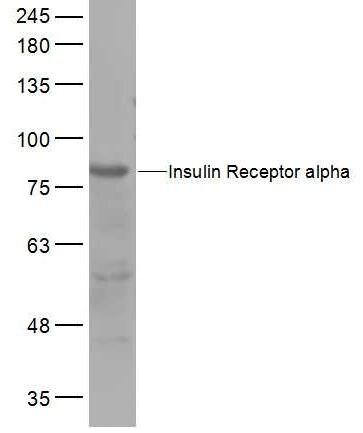 Western blot - Anti-Insulin Receptor alpha antibody (ab203037)