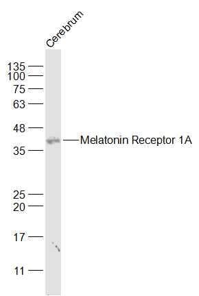 Western blot - Anti-Melatonin Receptor 1A/MTNR1A antibody (ab203038)