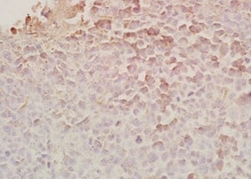 Immunohistochemistry (Formalin/PFA-fixed paraffin-embedded sections) - Anti-Chemerin antibody (ab203040)